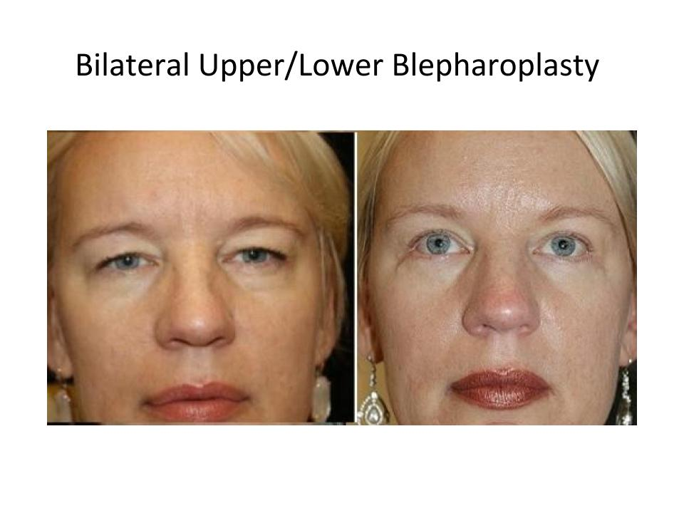 Patient before and after a upper and lower blepharoplasty in Austin from Dr. Amato