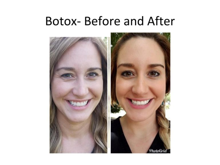 Dr. Malena Amaot's Austin. TX Botox results on a patient in her 20s
