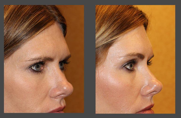 Before and after photo gallery of an endoscopic brow lift in Austin from Dr. Amato