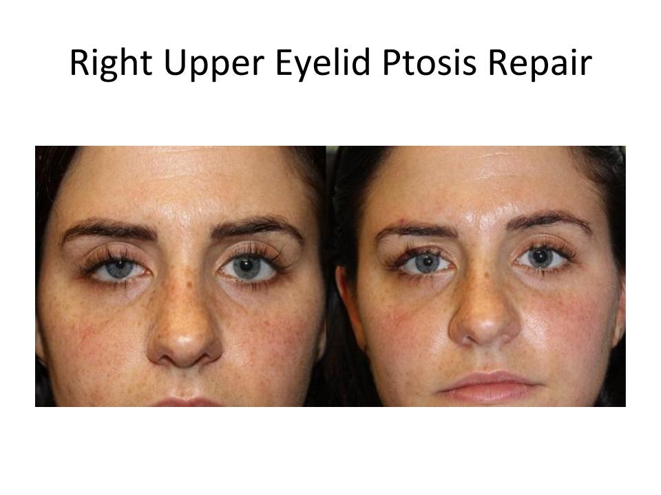 Patient treated by Dr. Amato for upper eyelid ptosis
