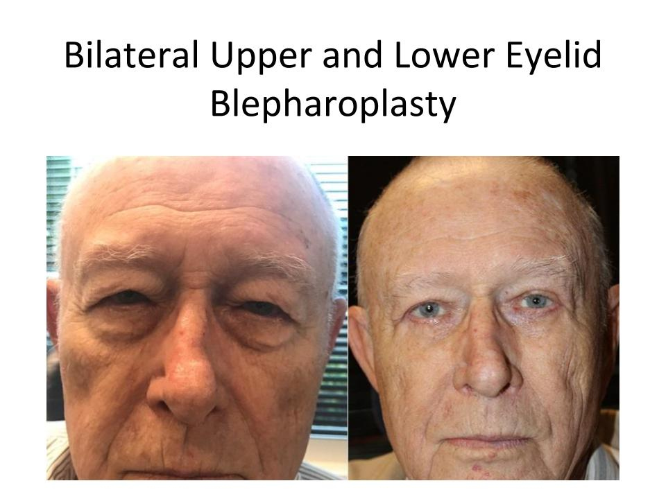 Male patient pictured before and after his Austin eyelid lift surgery with Dr. Amato