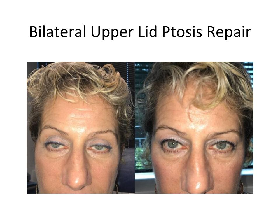 Before and after ptosis correction in Austin, TX