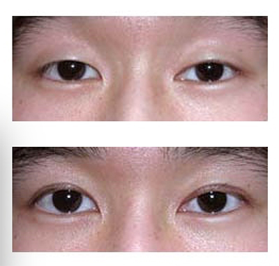 Asian Blepharoplasty Austin | Asian Eyelid Surgery | Dr  Malena Amato