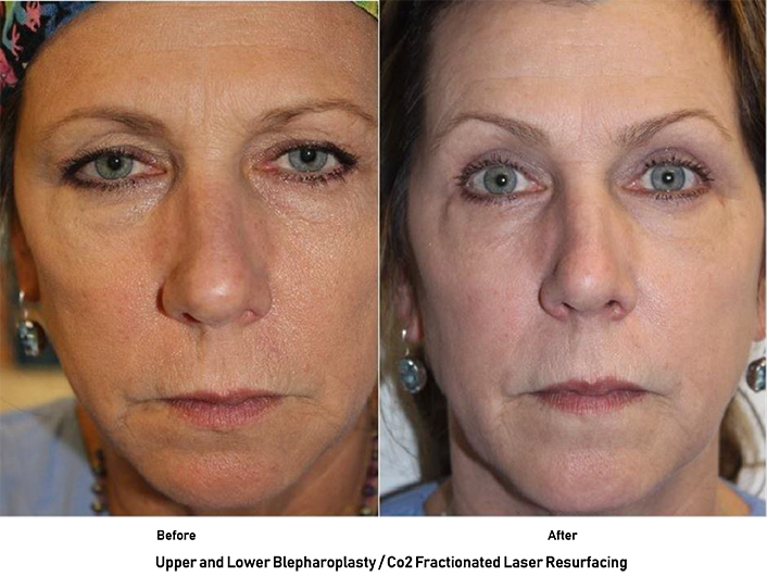 Patient results from and eye lift and laser skin resurfacing in Austin with Dr. Malena Amato