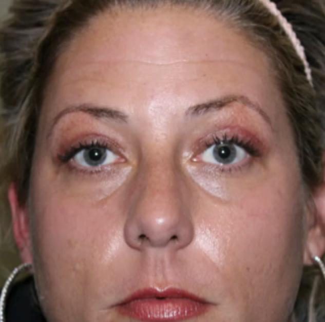 Tca Peel In Austin Skin Rejuvenation Dr Malena Amato