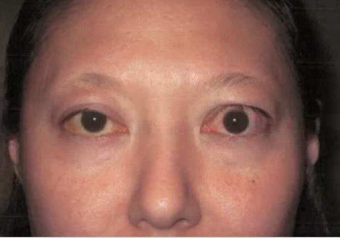 Treat Thyroid Eye Diease In Austin Graves Disease Dr Amato